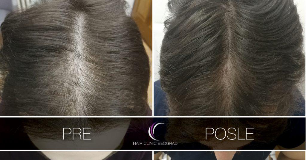 pre_posle_hair_clinic_beograd