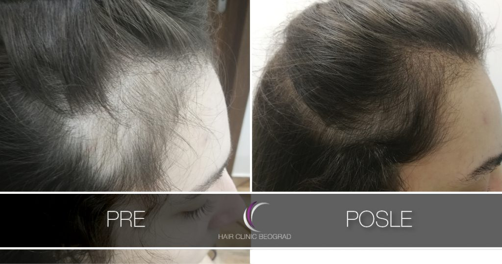 telogeni efluvium-hair-clinic-beograd