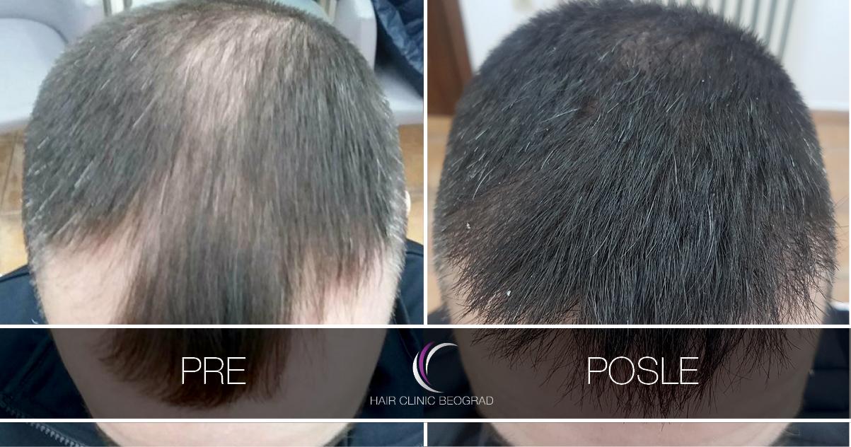 pre-posle-hair-clinic-beoograd (27)