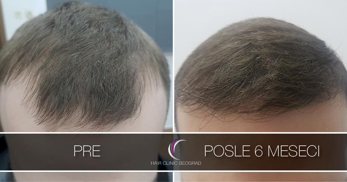 pre-posle-hair-clinic-beoograd (32)