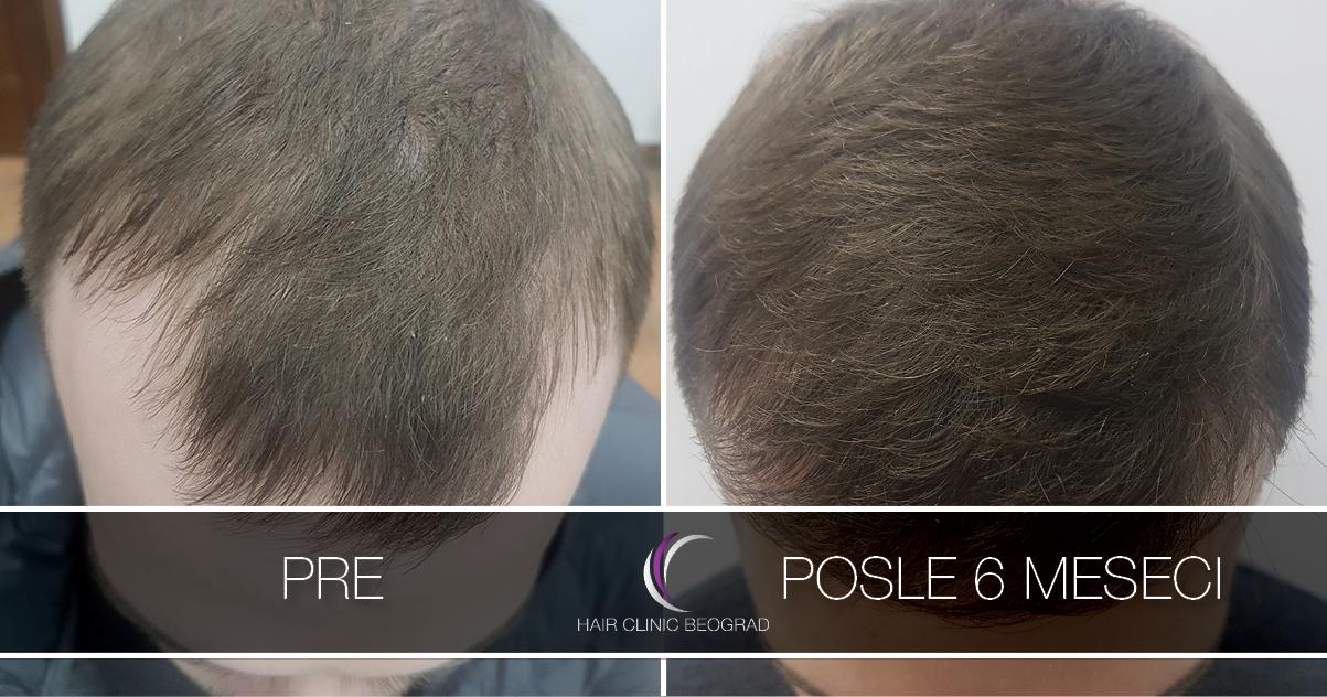 pre-posle-hair-clinic-beoograd (33)