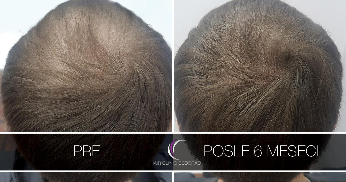 pre-posle-hair-clinic-beoograd (34)