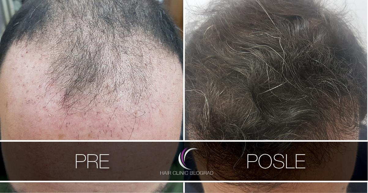 pre-posle-hair-clinic-beoograd (6)